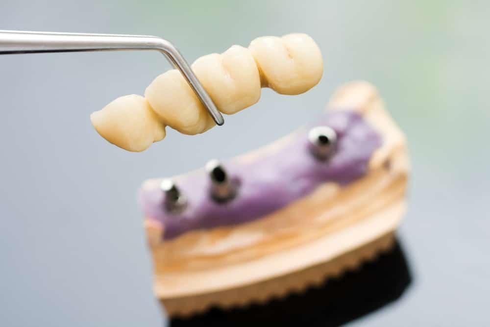 A dentist / dental technician placing the fixed partial denture ( the dental bridge)