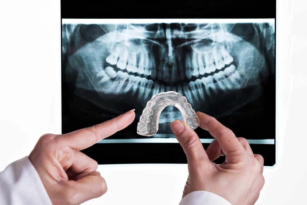 Photo of a dental Xray w night guard